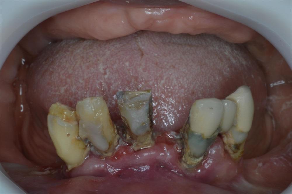 前歯の詰め物